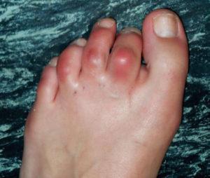 как лечить артрит суставов пальцев ног