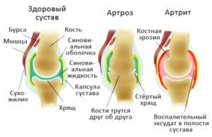 как отлечить артрит и артроз