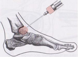 как правильно лечить боль в голене фото