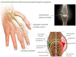 все проявления ювенильного артрита