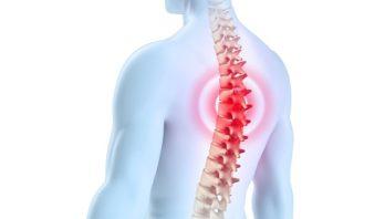 Грудной остеохондроз – причины возникновения, особенности клинического течения