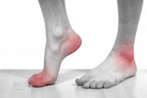 артрит ног как болезнь