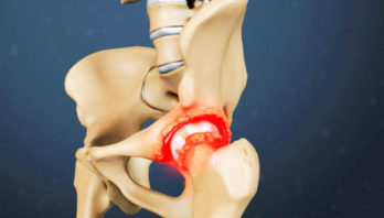 Артрит тазобедренного сустава: симптоматика, причины и лечение