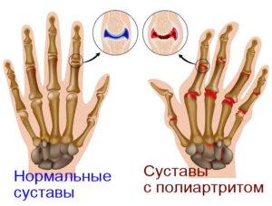 Полиартрит пальцев рук фотография пример