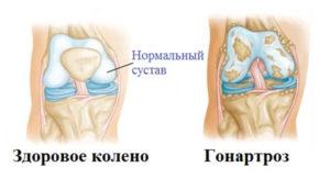 Сравнение гонартроза с нормальным коленом