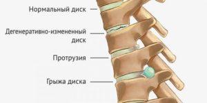 Фото изменений в позвоночнике остеохондроза