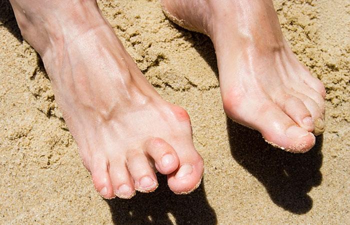Что такое артрит пальцев ног