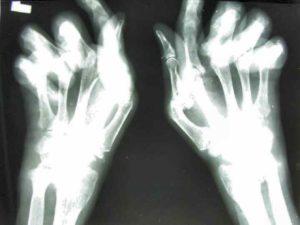 Проявление заболевания фотография ренгтген
