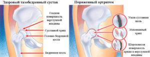 различия здорового тазобедренного сустава и больного