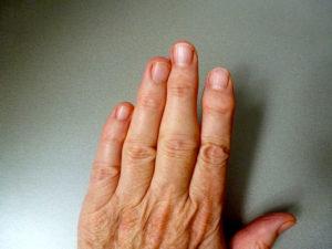 коротко о правильном лечении недуга
