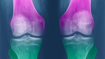 Остеоартрит: классификации, причины, симптомы, лечение