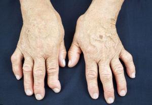 лечение препаратами ревматоидного артрита