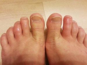 как лечить пальцы ног медикаментами