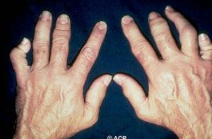 Полиостеоартроз рук фото