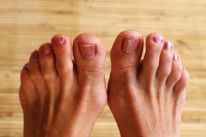 болезни большого пальца на ноге