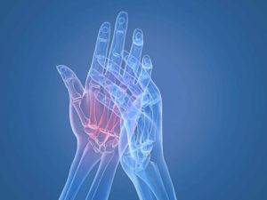 лечение и симптоматика заболевания суставов рук