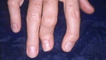 Полиостеоартроз: что это такое? Причины, лечение, диагностика