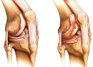 как выглядит реактивный артрит суставов