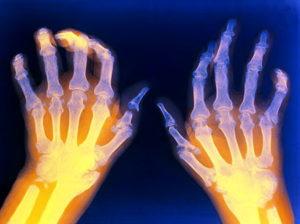 как правильно лечить недуг метотрексатом