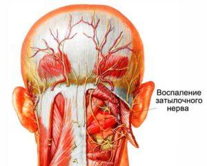 виды болей в шее самые явные