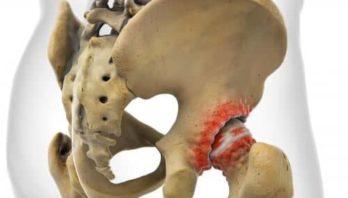 Коксартроз 3 степени: клинические проявления, лечение и профилактика патологии