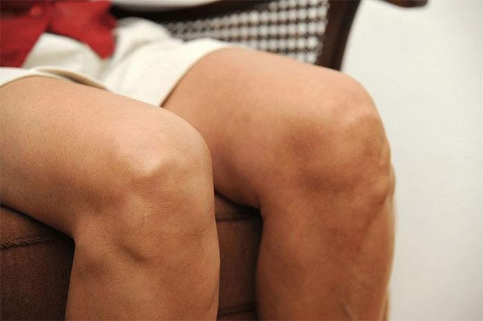 Остеоартроз коленного сустава – причины, симптомы, диагностика, лечение