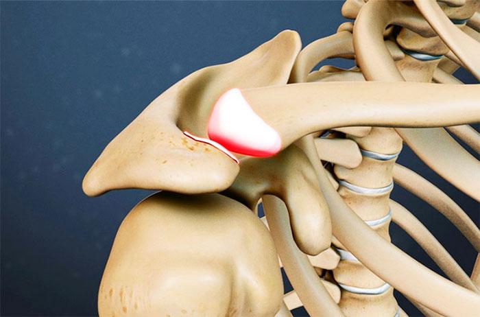 Бурсит плечевого сустава что делать