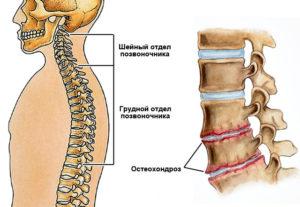 симптоматические проявления шейного остеохондроза