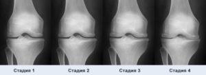 стадии заболевания колен, как разузнать недуг