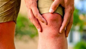 Остеоартроз коленного сустава 3 степени: лечение и причины