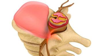 Спондилоартроз шейного отдела позвоночника, симптомы и лечение