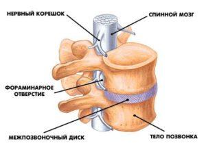2 степень остеохондроза как лечить