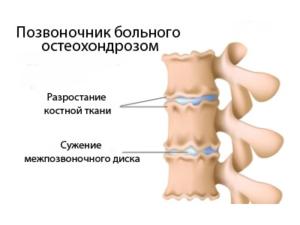 как выглядит позвоночник остеохондроза