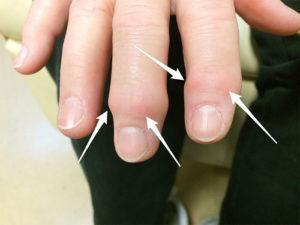 артроз, если болит большой палец