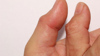Боль в большом пальце руки: причины, диагностика, лечение