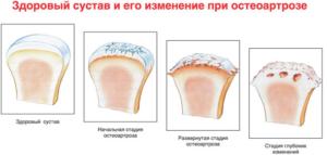 остеоартроз 2 степени