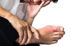 Признаки и лечение подагры у мужчин