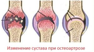 Остеоартроз коленного сустава 2 степени: симптомы, лечение