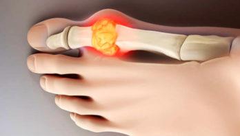 Подагра на ногах: почему возникает и основы лечения