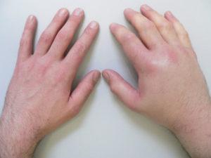 почему опухла рука и болит