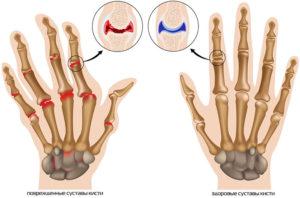 возможные заболевания из-за болей в пальцах