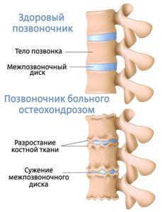 симптомы остеохондроза как распознать болезнь