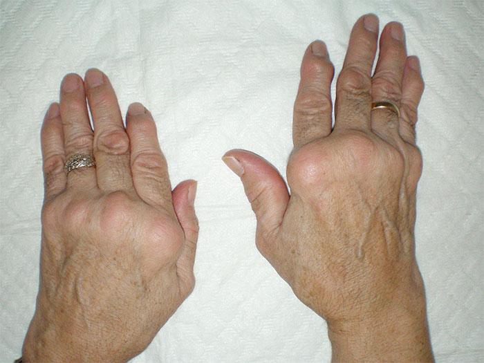 Как лечить деформированный артроз стопы