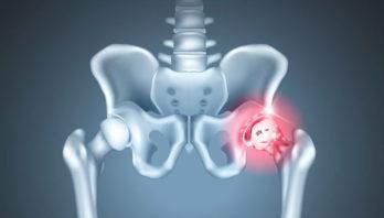 Остеоартроз тазобедренного сустава: симптоматика, диагностика, лечение