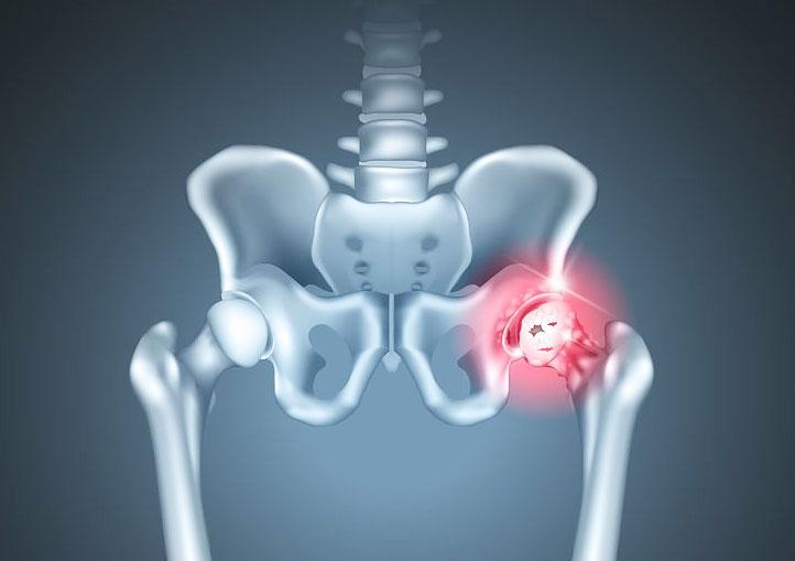Изображение - Остеоартроз тазобедренного сустава лечение в домашних условиях Hip-Replacement-Device-e1476125363901