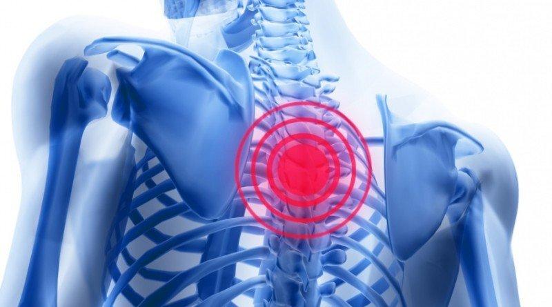 Симптомы остеохондроза: проявления, болезненность, слабость мышц