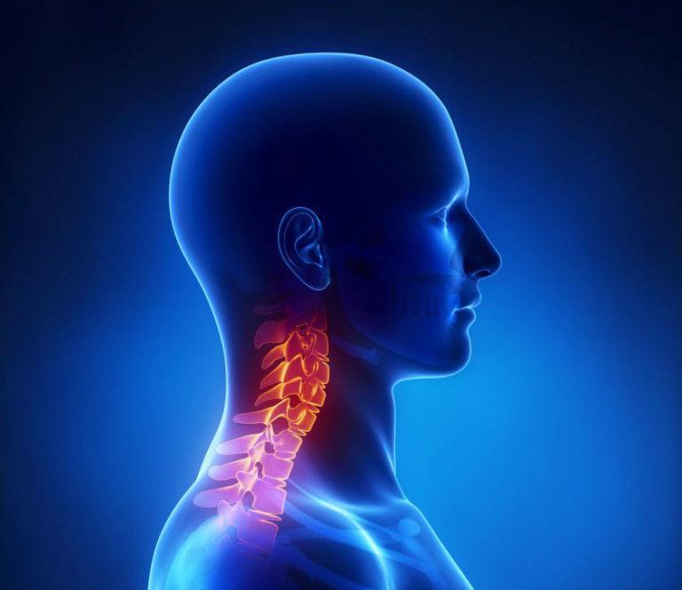 Внутричерепное давление от шейного остеохондроза