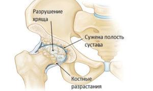 Изображение - Остеоартроз тазобедренного сустава лечение в домашних условиях Simptomy_osteoartroza_tazobedrennogo_sustava_4-300x180