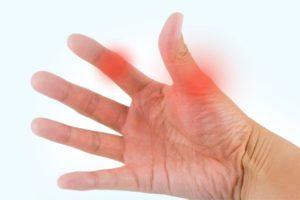Вот почему болит большой палец на руке