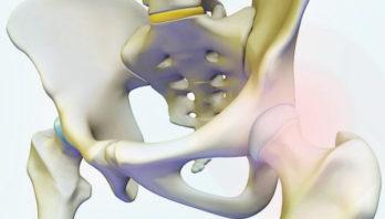 Боль в тазобедренном суставе: причины и способы лечения